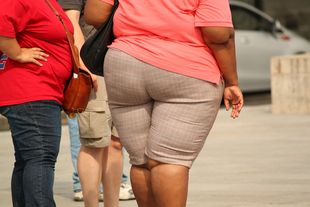 """NEWS: Bariatric Surgery May Help Reset Weight """"Set Point"""""""