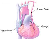 heart bypass surgery - Coronary Artery Bypass Surgery Medical Tourism