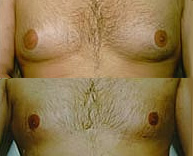 Male Breast Reduction / Enhancement