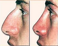 Nose Job / Rhinoplasty Abroad Before After