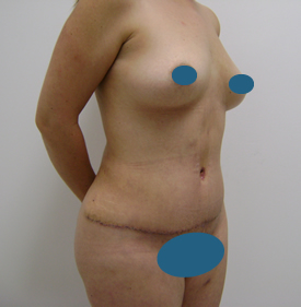 tummy after - Dr. Joaquin Ayala - Plastic Surgeon in Tijuana, Mexico