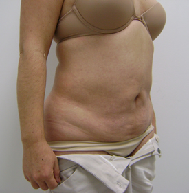 tummy before - Dr. Joaquin Ayala - Plastic Surgeon in Tijuana, Mexico