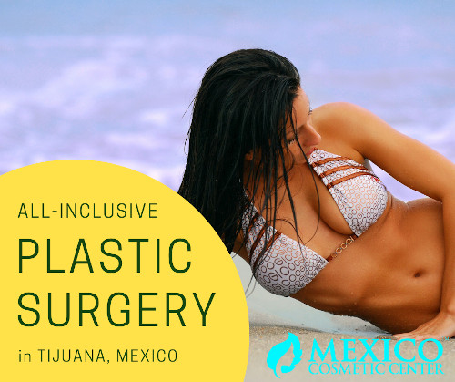 Plastic Surgery at Mexico Cosmetic Center Banner