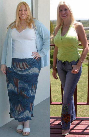 Mexicali Bariatric Center - Before and After