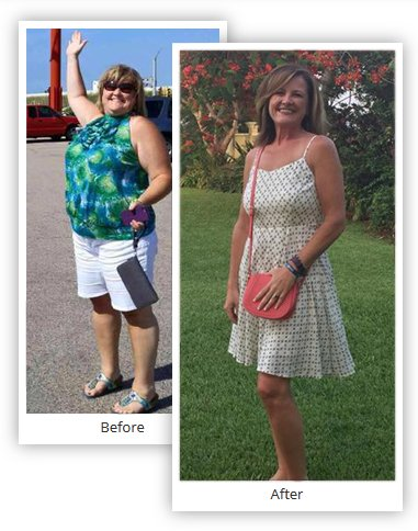 Mexico Bariatric Services - Before and After
