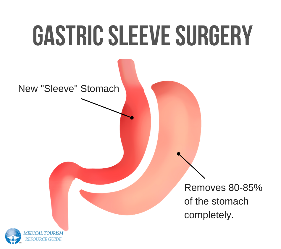 Gastric Sleeve Surgery - How it works