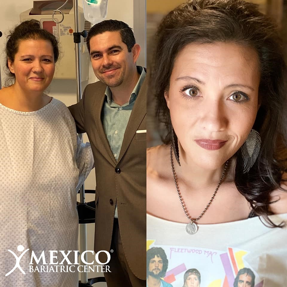Heather C - before after picture - Dr Alejandro Gutierrez